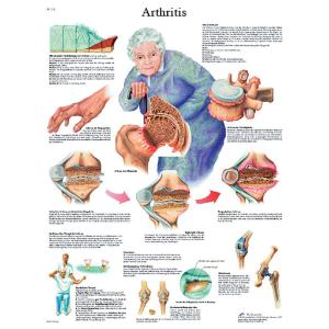 3B Scientific® Arthritis Chart