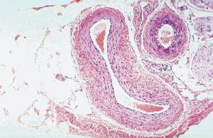 Artery & Vein