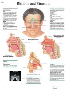 3B Scientific® Rhinitis Chart