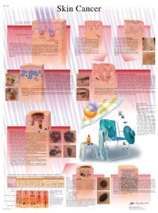 3B Scientific® Skin Cancer Chart