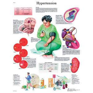 3B Scientific® Hypertension Chart