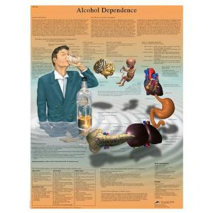 3B Scientific® Alcohol Dependence Chart