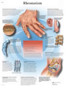 3B Scientific® Rheumatism Chart