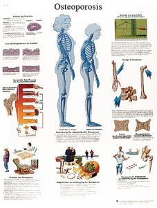 3B Scientific® Osteoporosis Chart