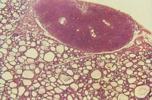 Thyroid & Parathyroid Slide