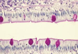 Small Intestine, Goblet Cells Slide