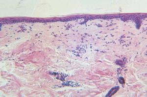 Adult Skin, Unpigmented