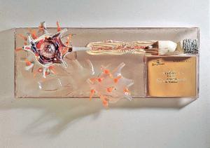 Somso® Removable Neuron Model