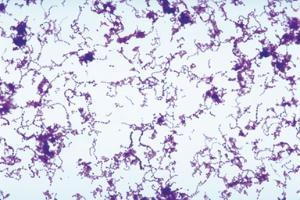 Ward's® Live <i>Streptococcus pyogenes</i> Culture - PATHOGEN