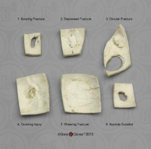 BoneClones® Skull Trauma Set of Six Fragments