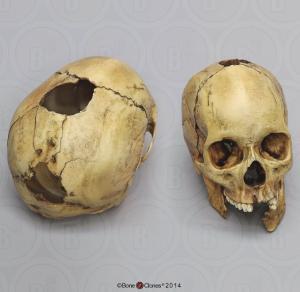 BoneClones® Human Female Skull with Shotgun Wounds