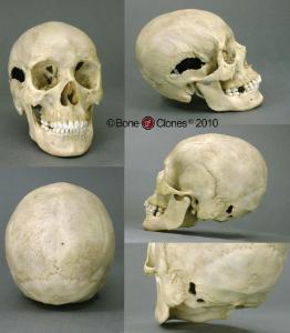 BoneClones® Human Female Skull with Multiple Gunshot Wounds