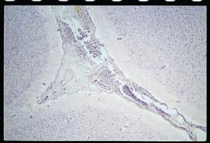 Meningitis Slide