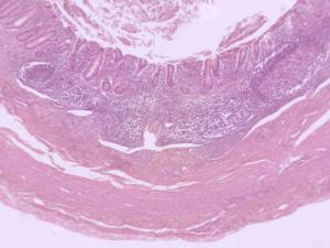 Ward's® Human Pathology Slide Set