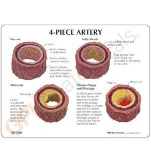 GPI Anatomicals® Artery Model