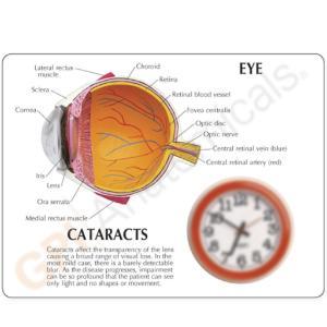 GPI Anatomicals® Cataract Eye Model