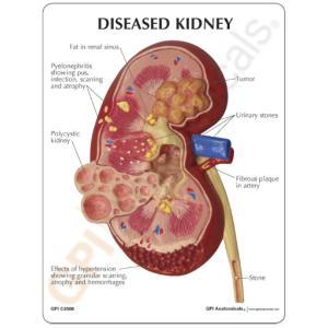 GPI Anatomicals® Kidney Pathology Model