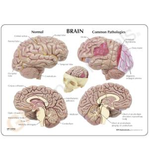 GPI Anatomicals® Brain in Skull Pathologies Model