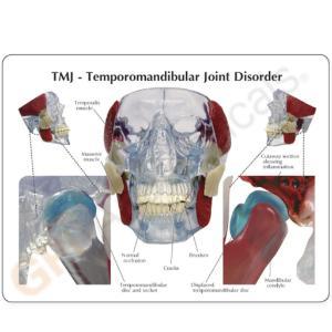 GPI Anatomicals® TMJ/Temporomandibular  Model