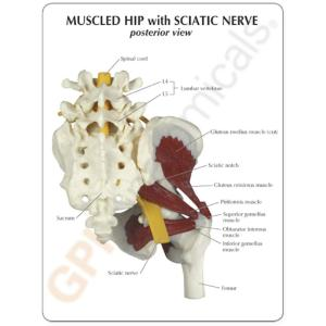 GPI Anatomicals® Muscled Hip with Sciatic Nerve