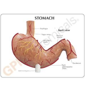GPI Anatomicals® Stomach Cancer