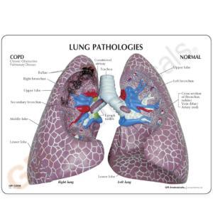 GPI Anatomicals® Lung Set with pathologies