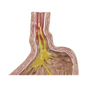 GPI Anatomicals® GastroEsophageal Reflux Disease(GERD)