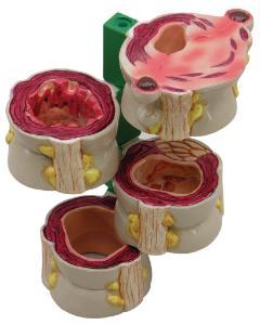 GPI Anatomicals® Colon Pathology Model