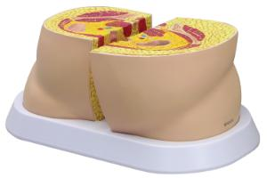 GPI Anatomicals® Obesity Model