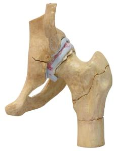 GPI Anatomicals® Arthritic Hip Model